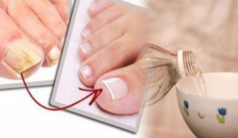 Elimina de forma definitiva todos los hongos de tus uñas con este ...